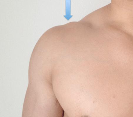 articulacion acromioclavicular