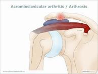 articulacion acromioclavicular04