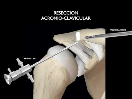 articulacion acromioclavicular05