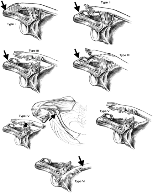 articulacion acromioclavicular07