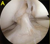 artrocopia de rodilla01