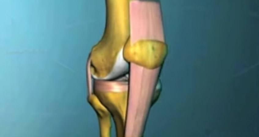 ¿Cómo es una rodilla normal?